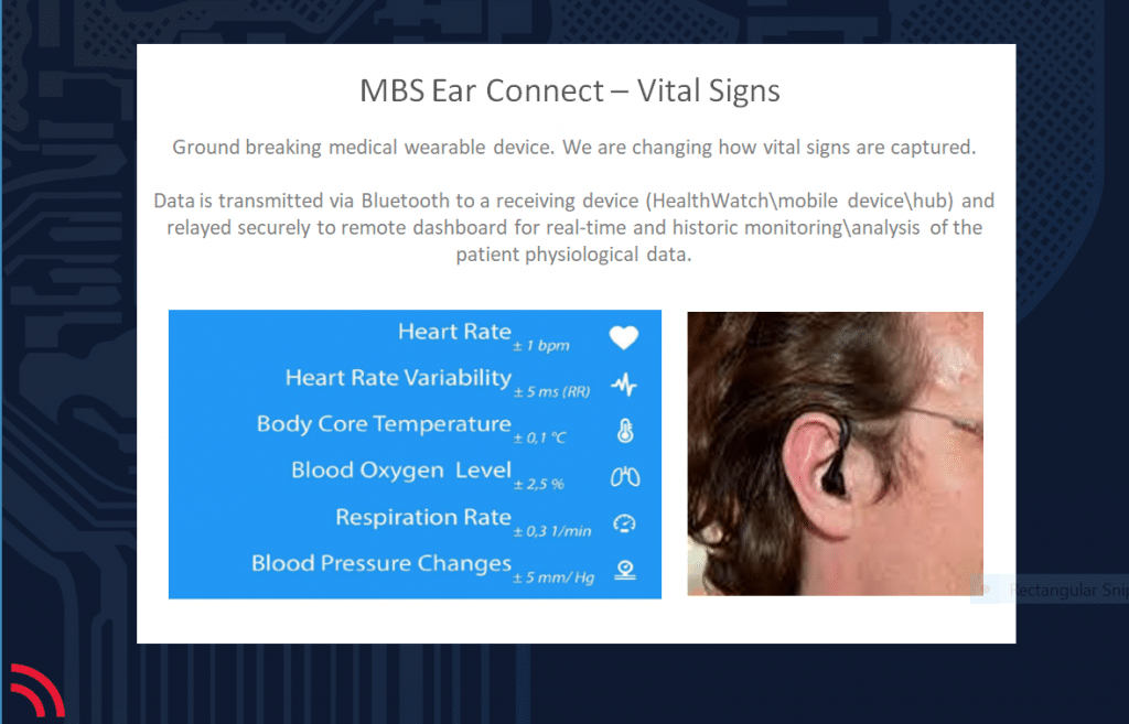 MBS Ear-Connect-2